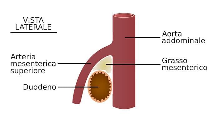 Olio di seme di lino in capsule allatto di risposte di perdita di peso