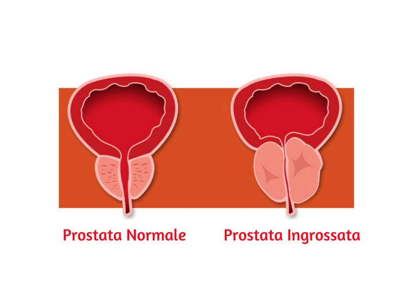 Prostata Normale, Prostata Ingrossata Prostamol®